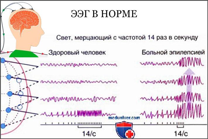 Показатели при энцефалографии